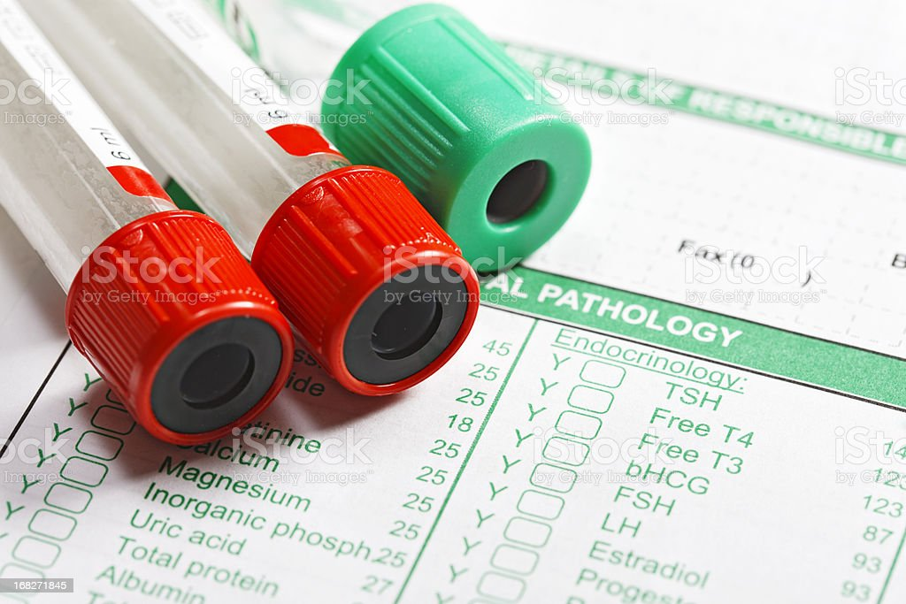 Three blood collection tubes on lab tests form stock photo