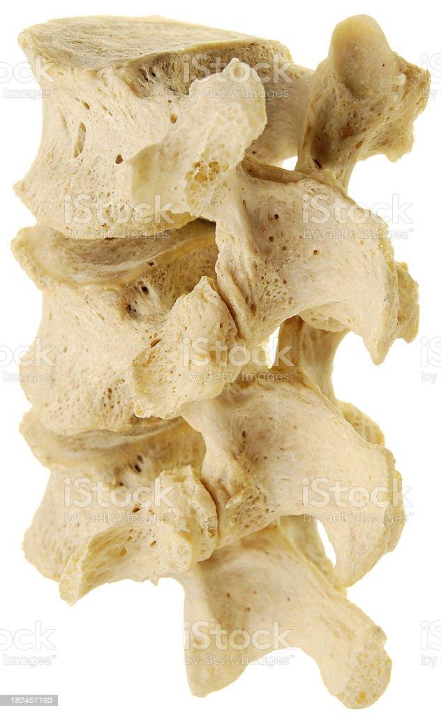 Three human lumbar vertebrae - posterior oblique view stock photo
