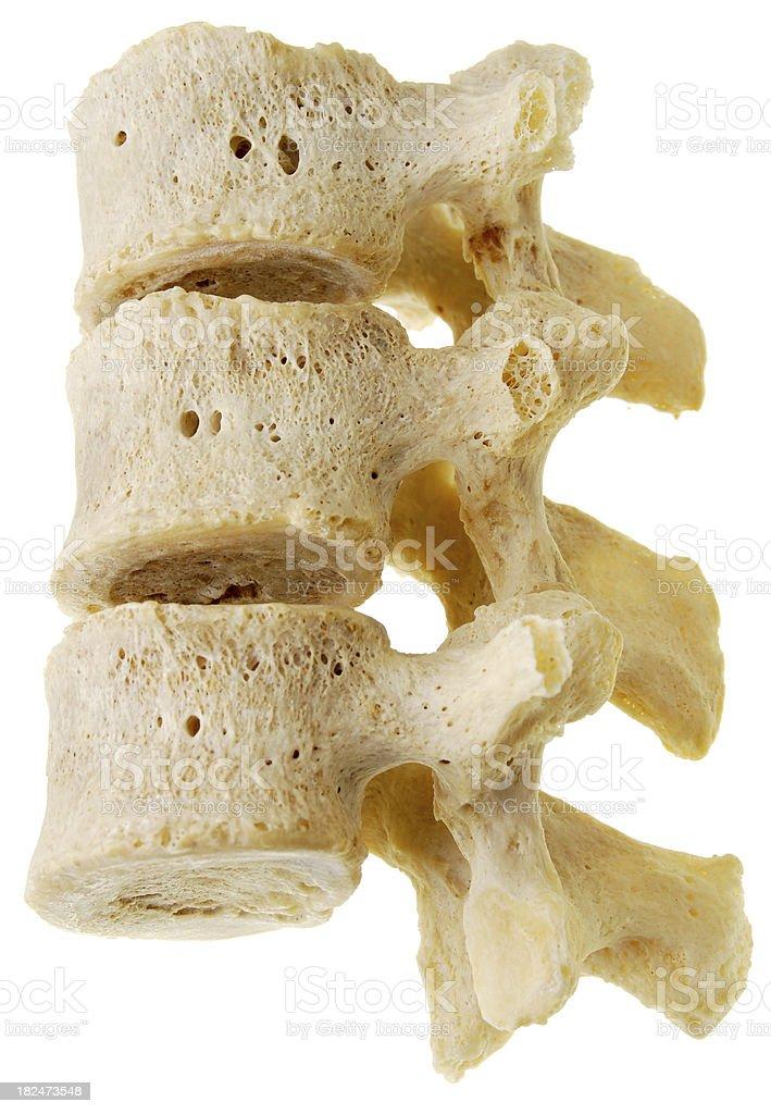 Three human lumbar vertebrae - side view stock photo