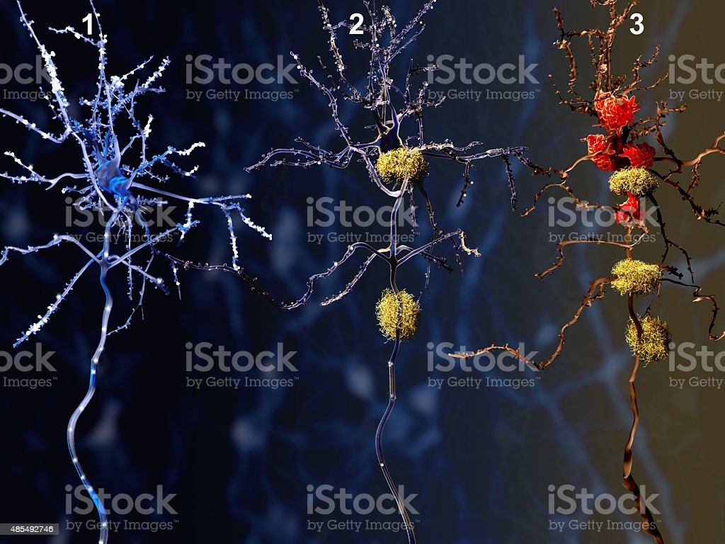 Three phases of the Alzheimer disease stock photo
