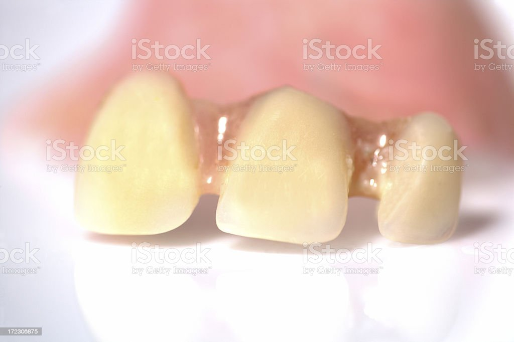 three yellow false teeth with gums in background royalty-free stock photo