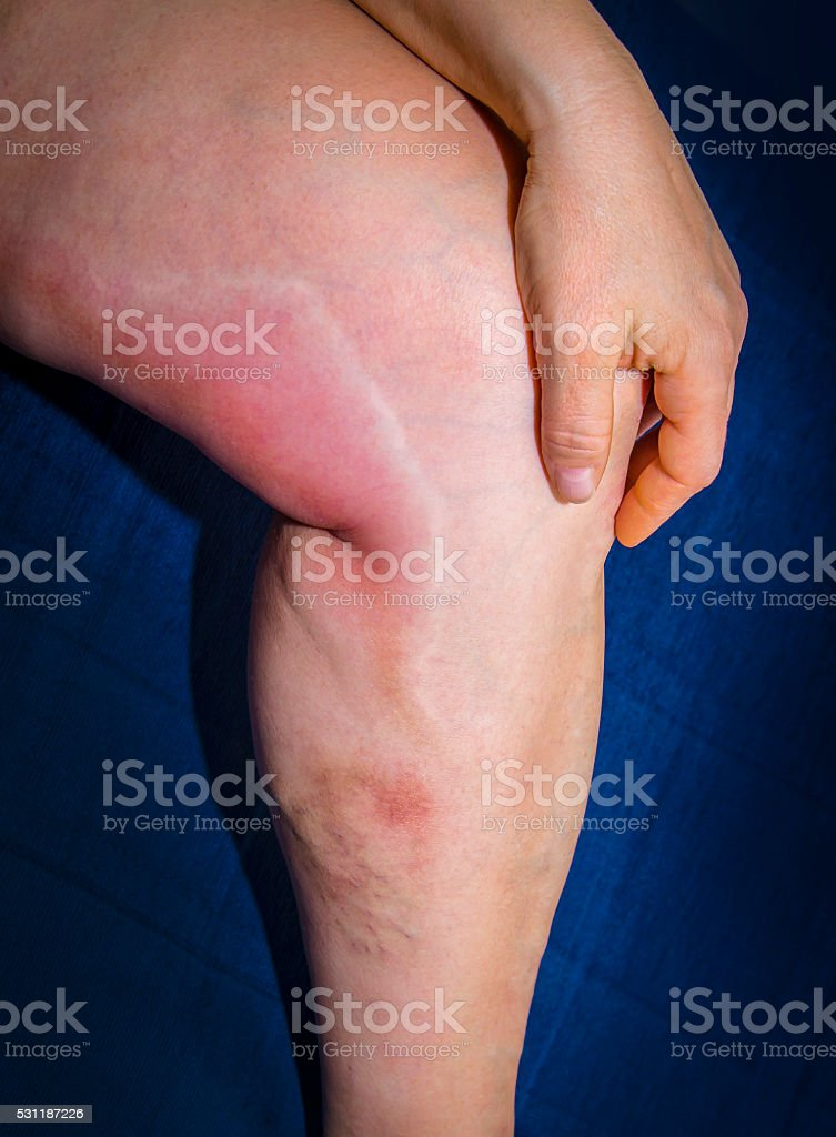 Thrombophlebitis in human leg royalty-free stock photo