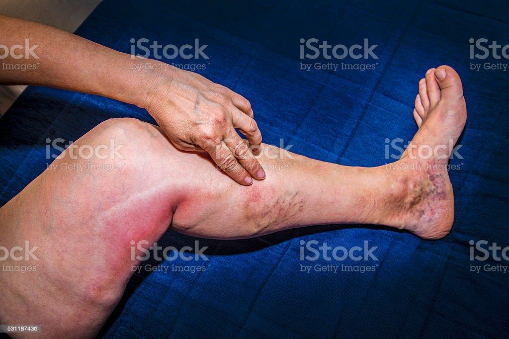 Thrombophlebitis in human leg royalty-free stock photo