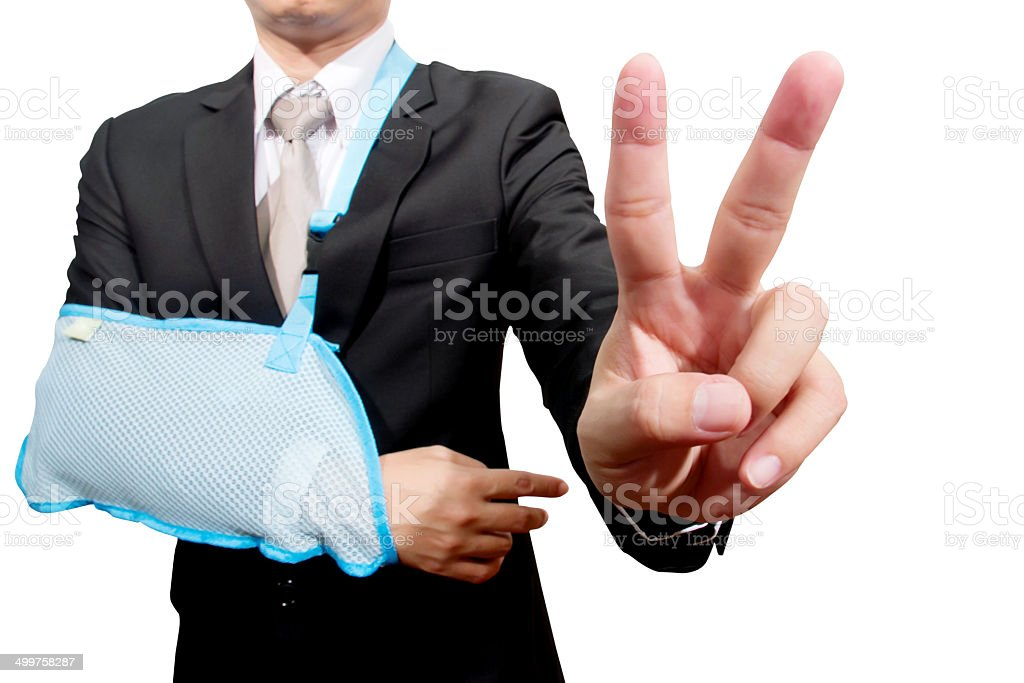 thumb up young businessman with broken hand stock photo
