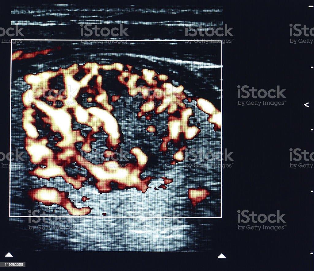 thyroid nodule ultrasound stock photo