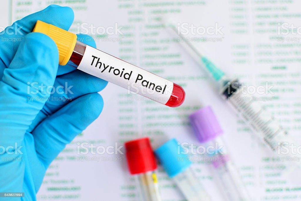 Thyroid panel test stock photo