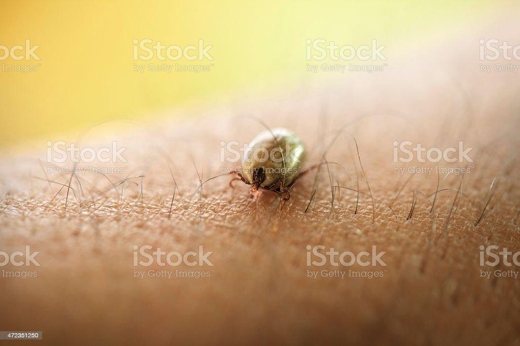 Tick crawling on human skin stock photo