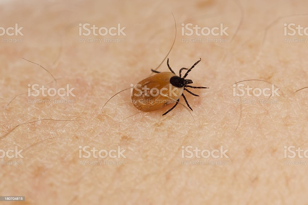 tick on human skin stock photo