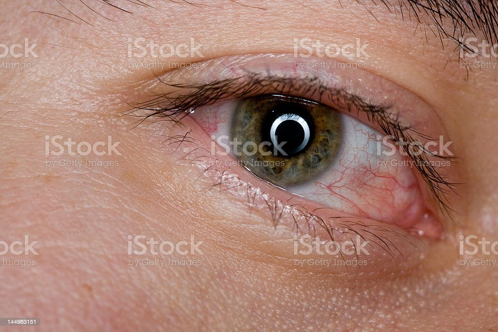 Close-up of one eye showing signs of irritation and stress. Might be...