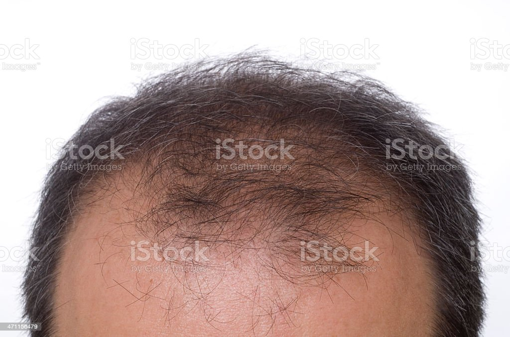 to become bald 2 stock photo