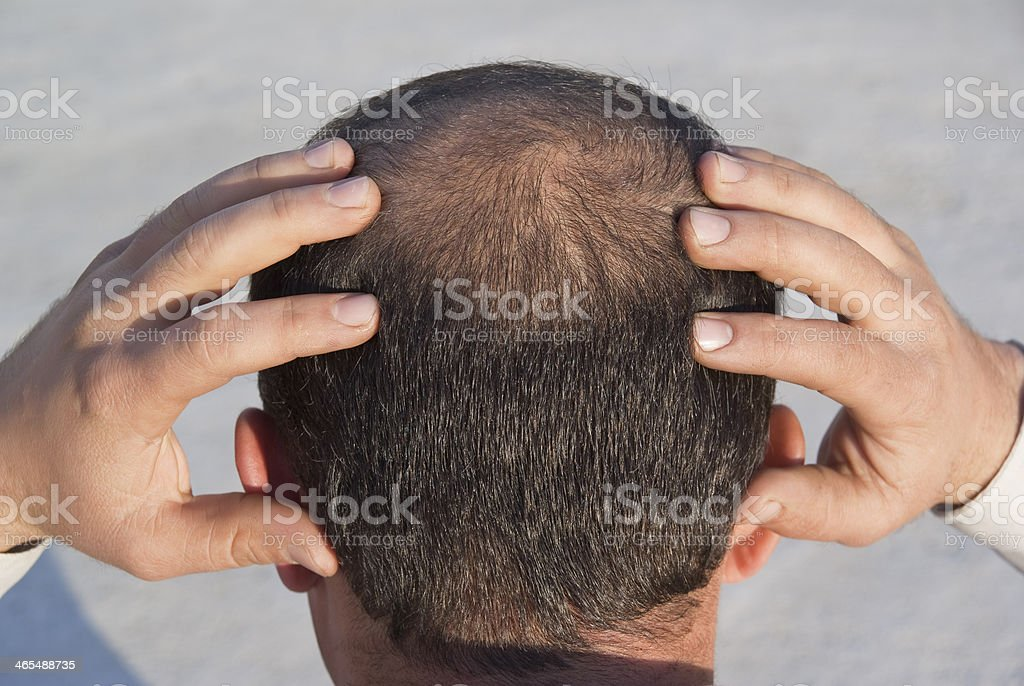 to become bald royalty-free stock photo