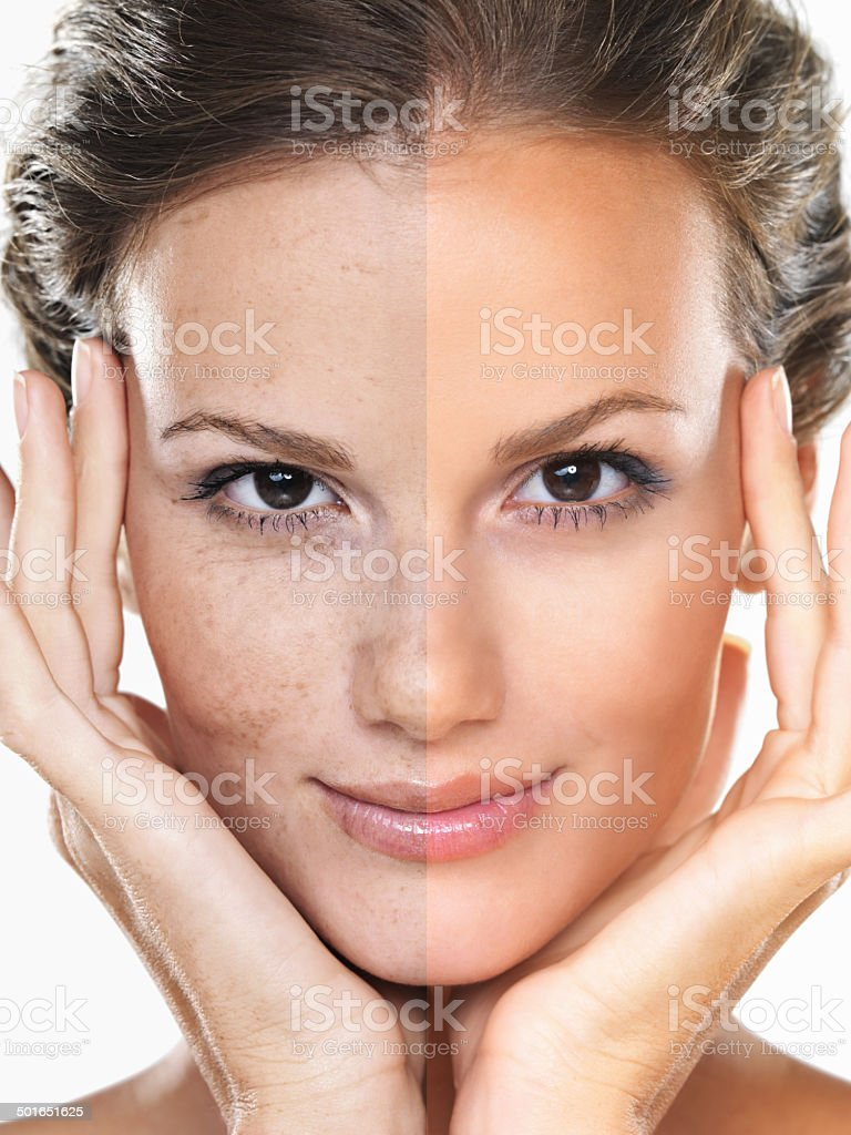 To tan or no to tan?! stock photo