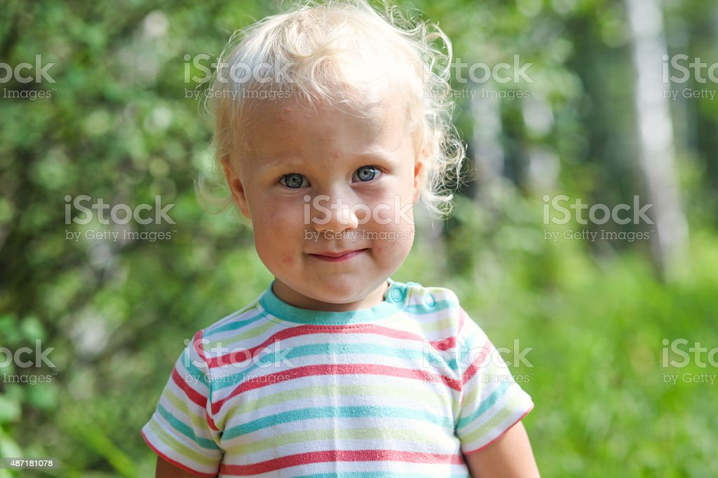 Toddler girl with mosquito bites on her face stock photo