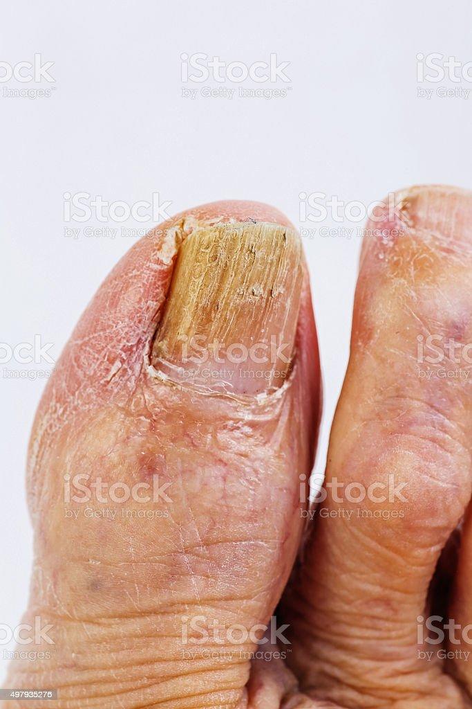Toe Nail Fungus stock photo