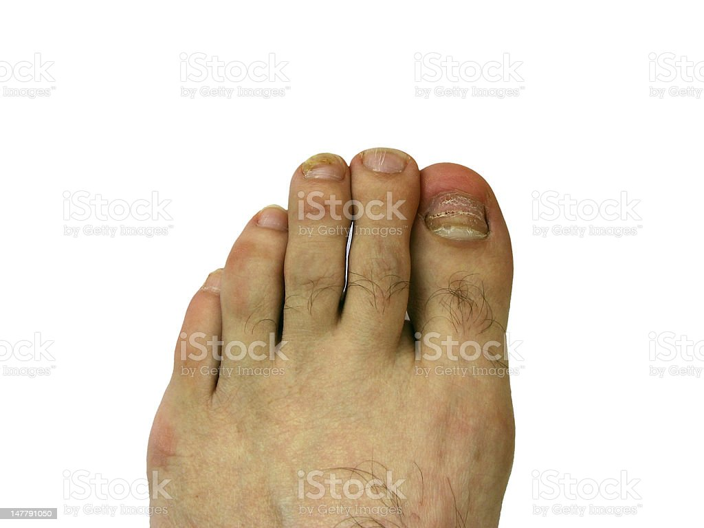 Toe nail with bruise stock photo