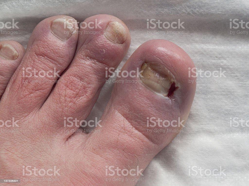 Toe Surgery royalty-free stock photo