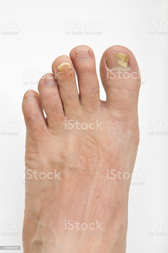 Toenail fungus royalty-free stock photo