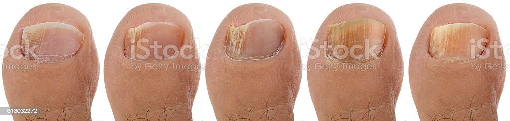 Toenail Fungus Sequence stock photo
