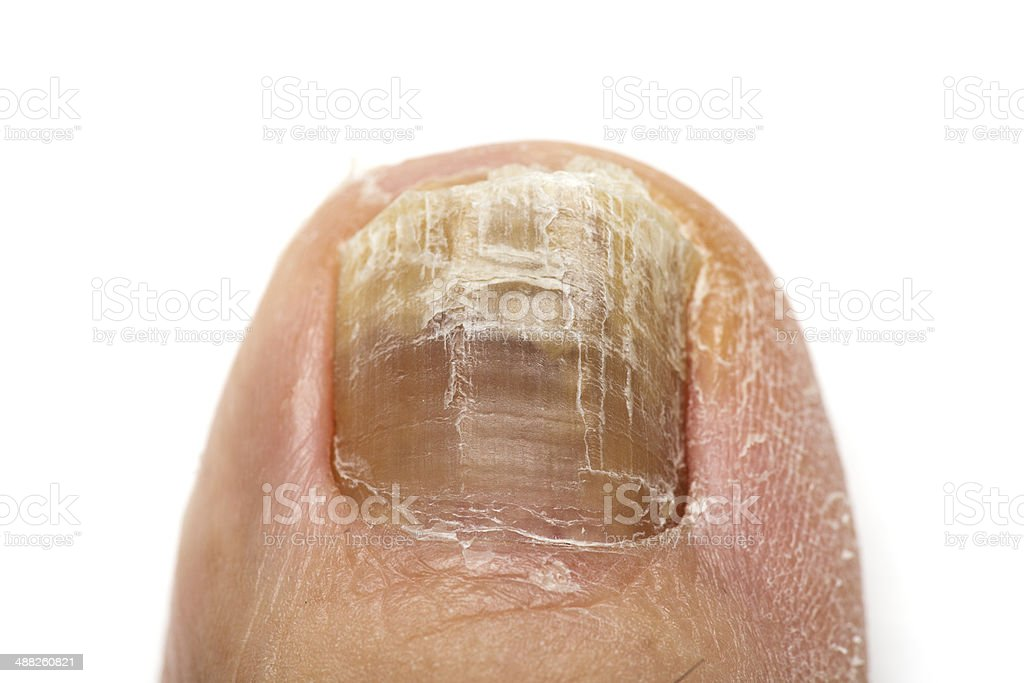 Toenail stock photo