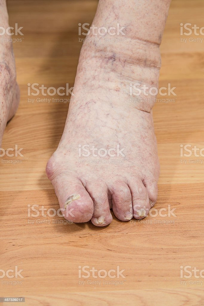toes with damaged nails royalty-free stock photo