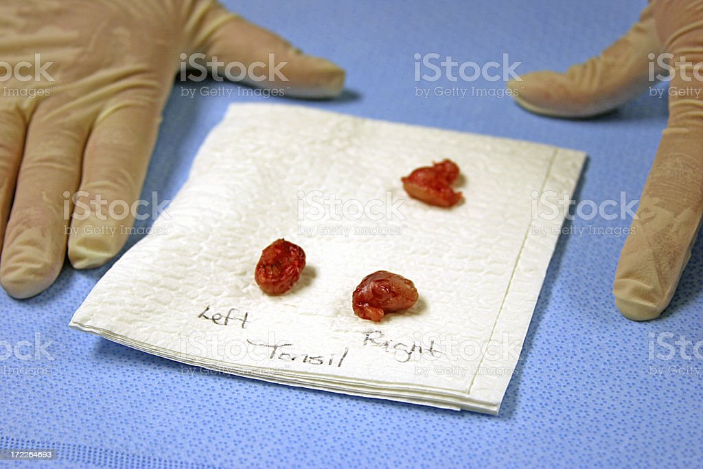Tonsils and Adenoid with Gloved Hands stock photo