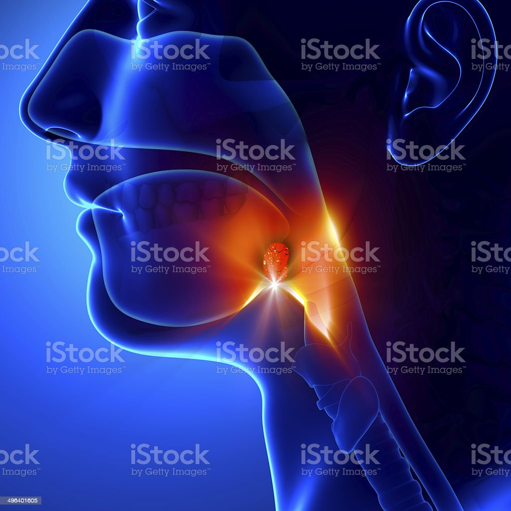 Tonsils - Angina Pectoris stock photo
