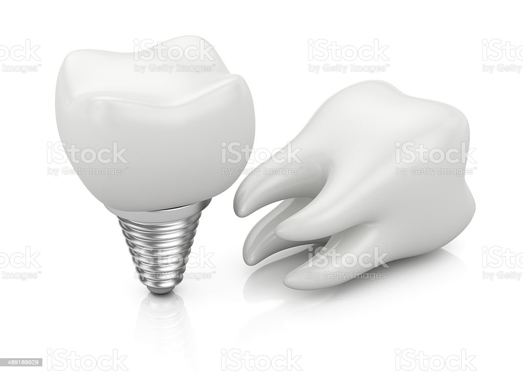 Tooth and dental implant royalty-free stock photo