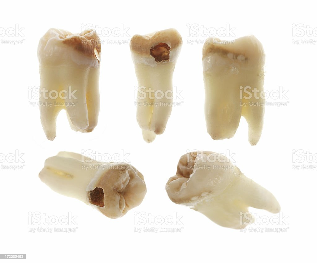 Tooth Decay royalty-free stock photo