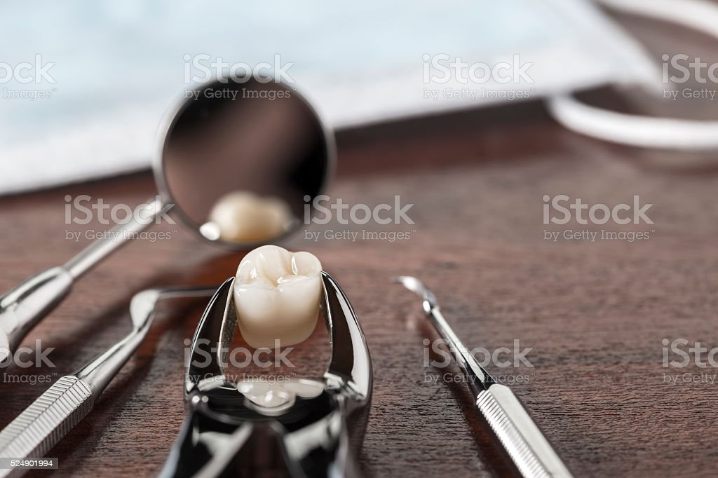Tooth extraction concept stock photo
