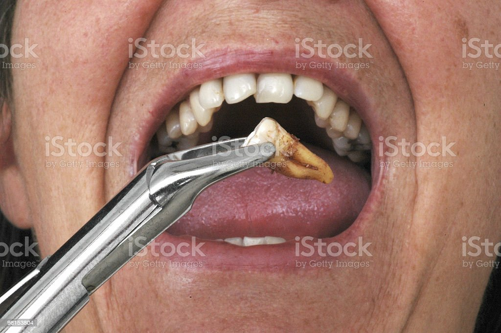 Tooth Extraction stock photo