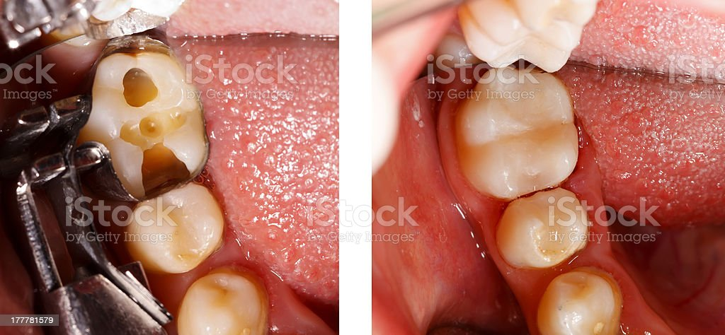 Tooth filling by dentist stock photo