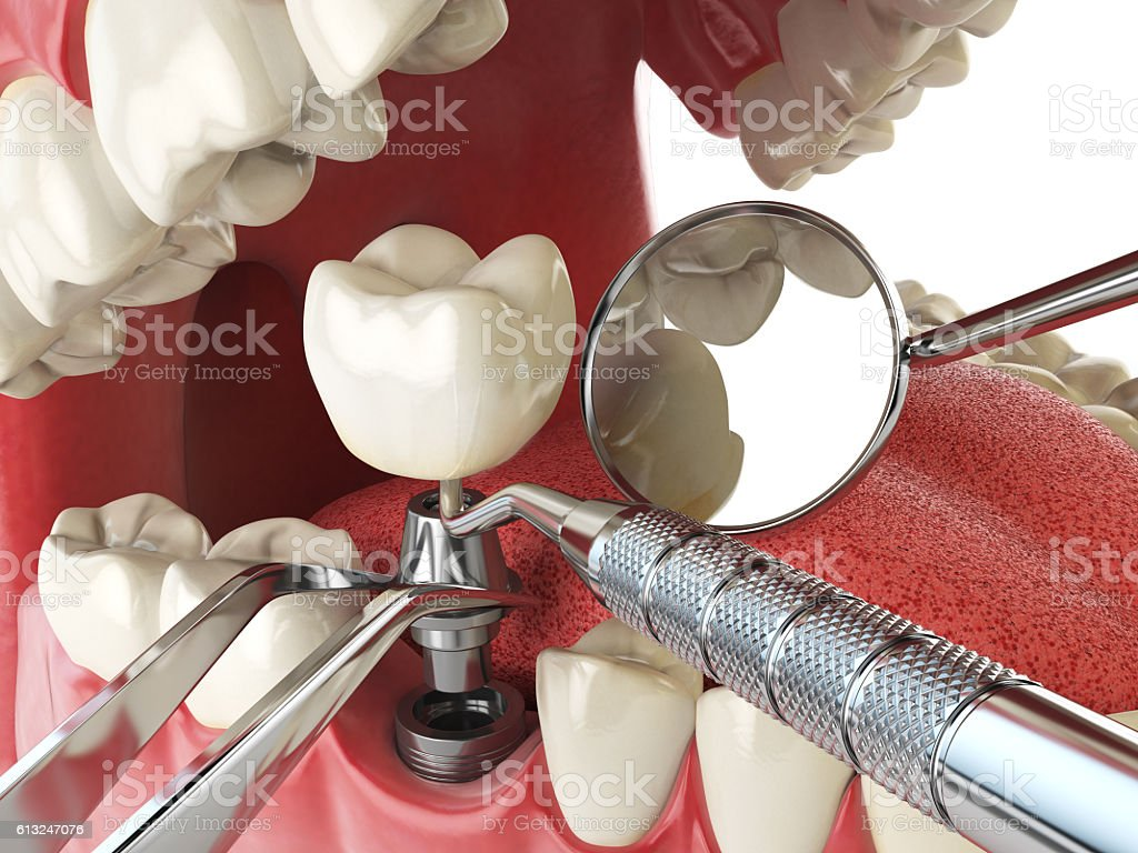 Tooth human implant. Dental implantation concept. Human teeth or stock photo