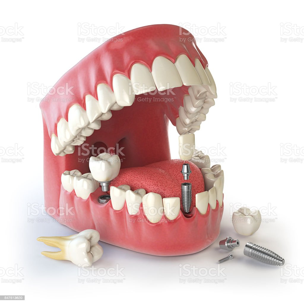 Tooth implant. Dental concept. Human teeth or dentures. stock photo