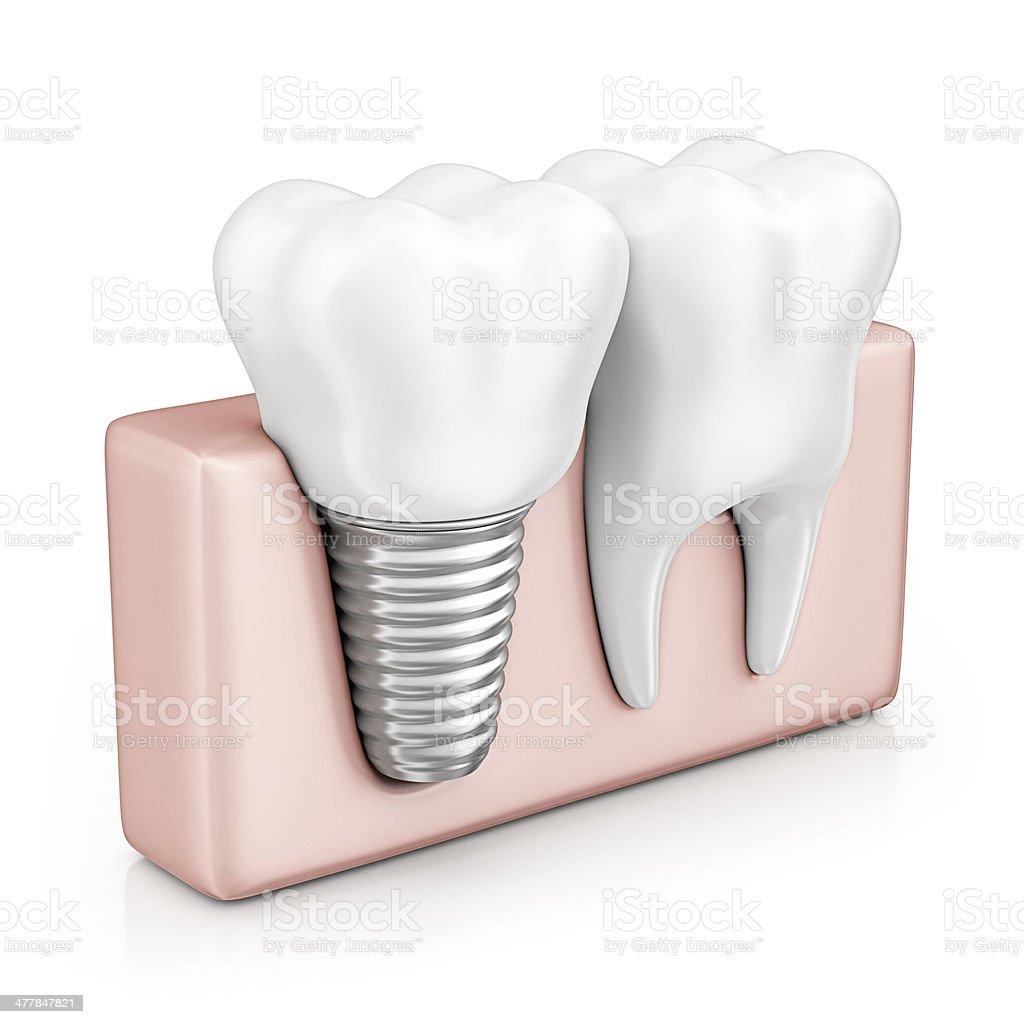 tooth implant stock photo