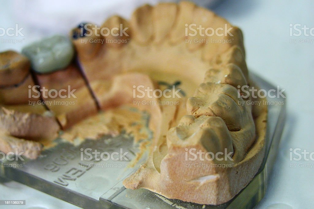 Tooth Mould royalty-free stock photo
