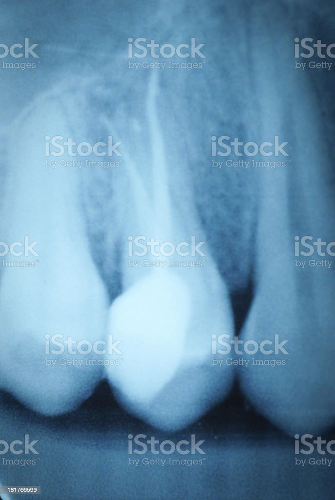 tooth x-ray film royalty-free stock photo