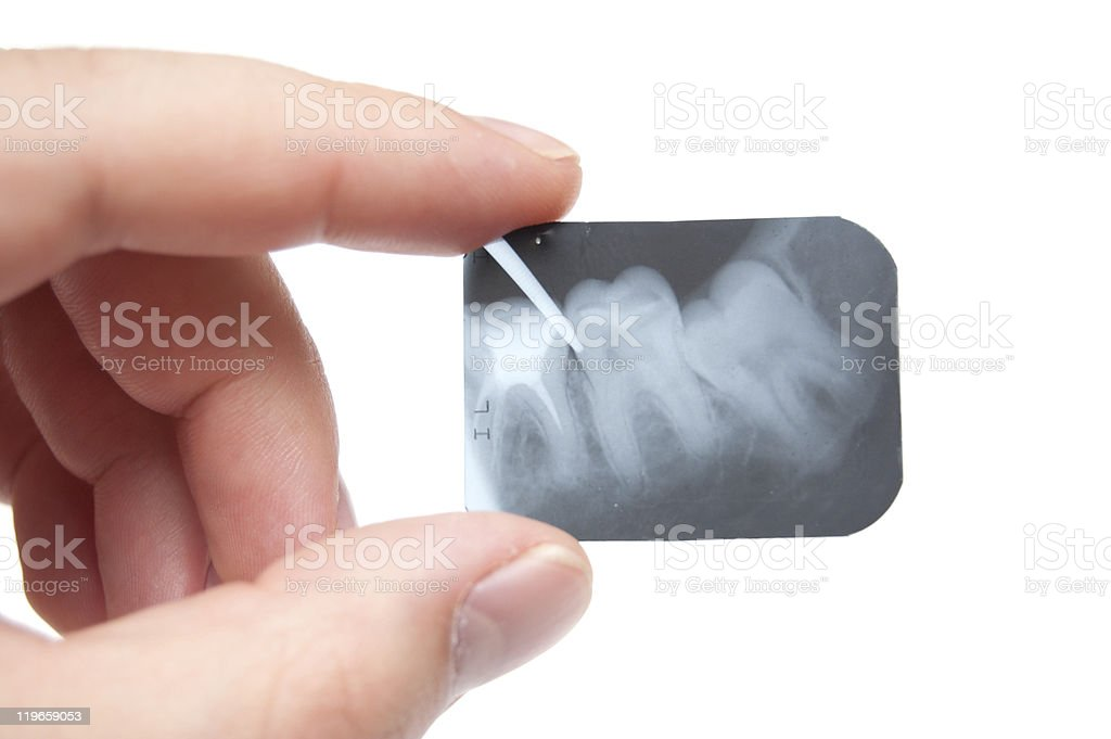 tooth x-ray stock photo