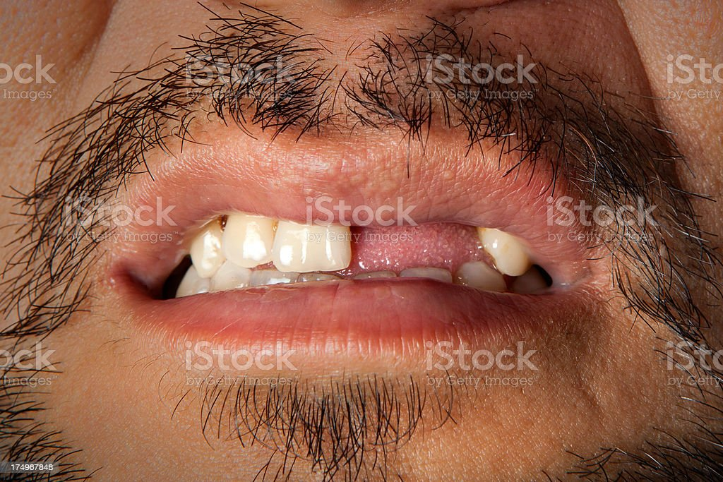 Toothless man close up shot stock photo