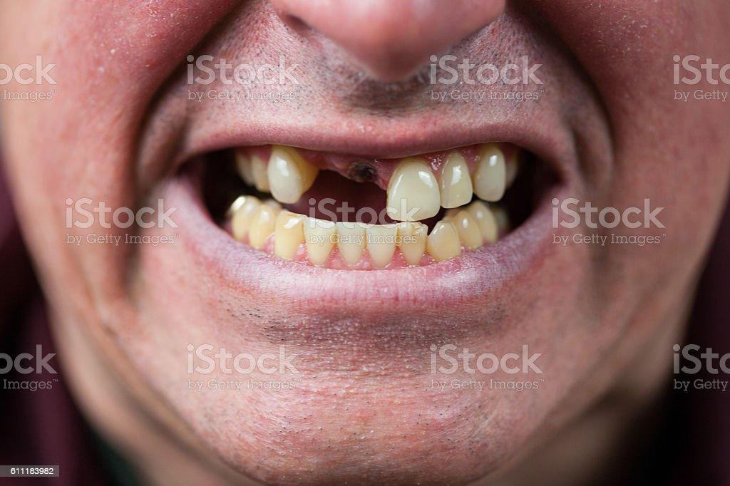 Toothless Man stock photo
