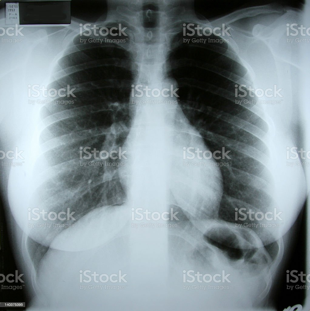 torax xray stock photo