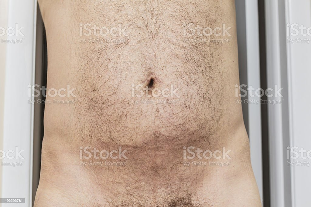 Torso With Umbilical Hernia Belly Button Scar stock photo