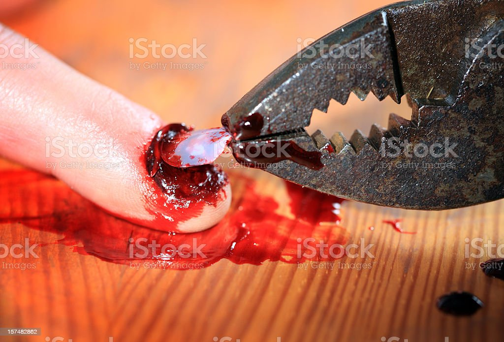 Torture - Denailing stock photo