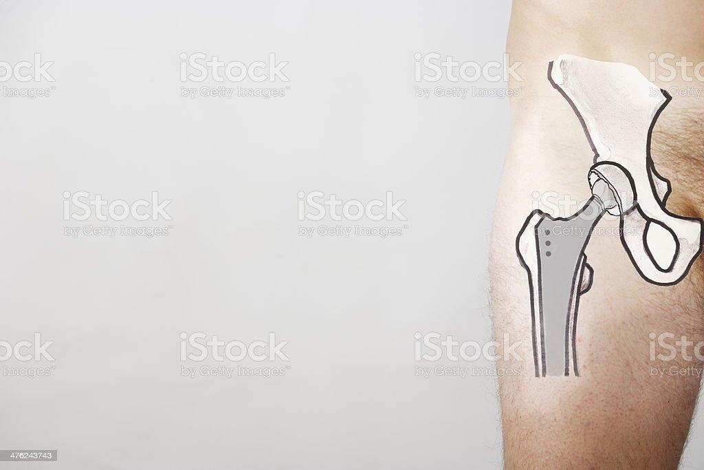 Total hip endoprosthesis stock photo