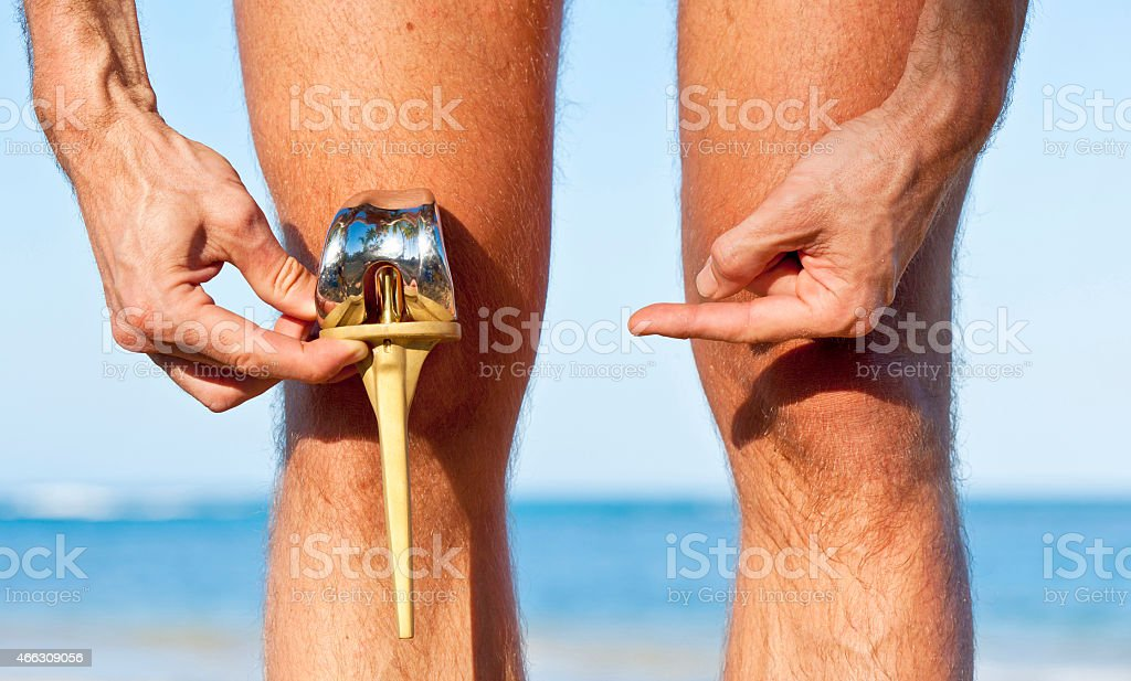 Total knee prostesis with tibial and femoral part stock photo