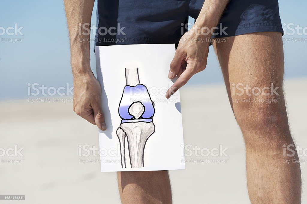 Total knee replacement royalty-free stock photo