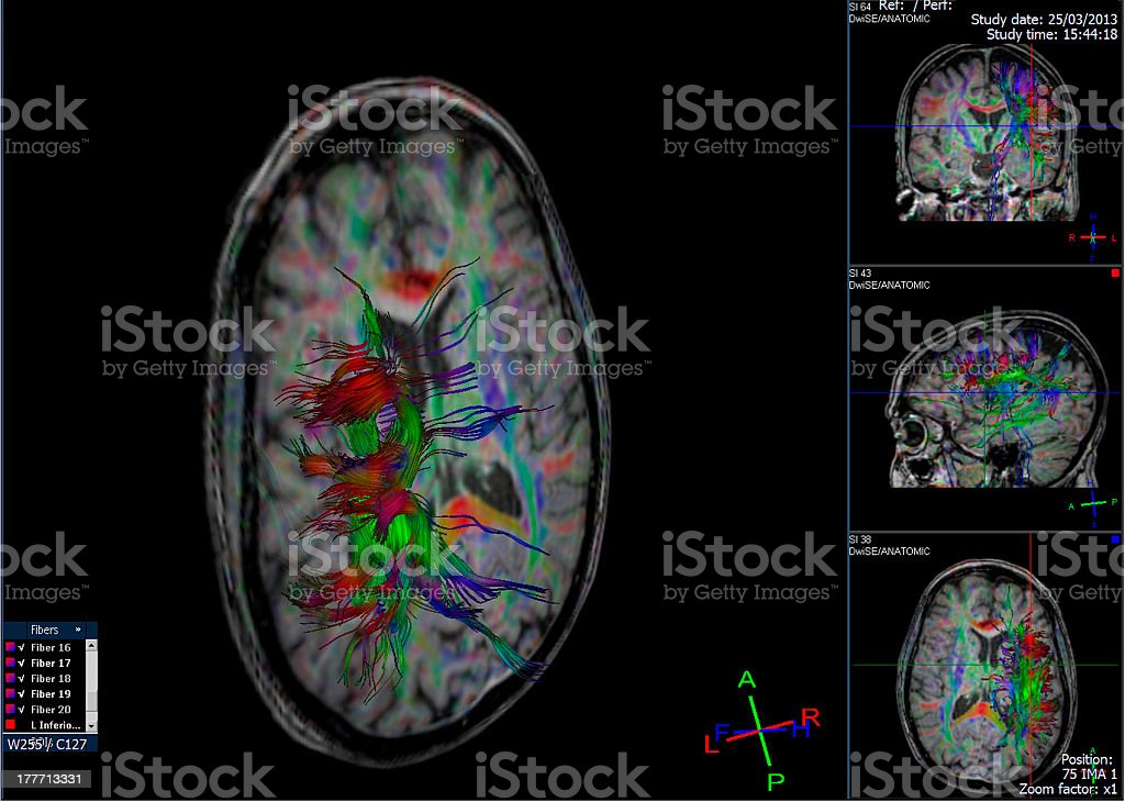 Tractography (DTI- diffusion tensor imaging MRI) of the brain royalty-free stock photo