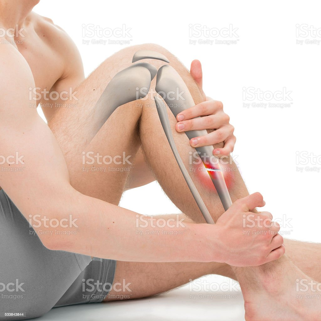 Transverse Fracture of the Tibia - Leg Fracture 3D illustration stock photo