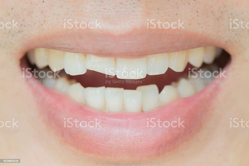 Trauma and Nerve Damage of injured tooth, Permanent Teeth Injury. stock photo