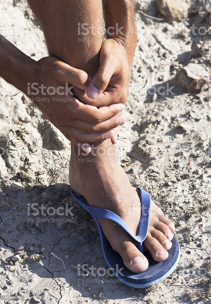 Trauma of a foot. Sprained ankle stock photo