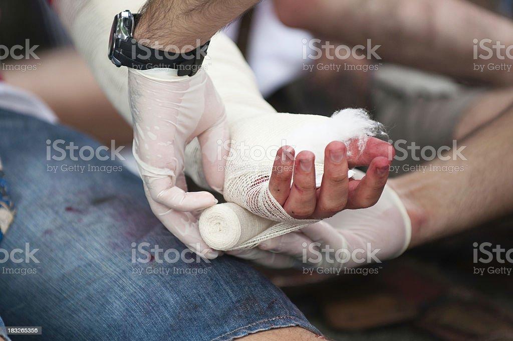 Treating injured hand stock photo